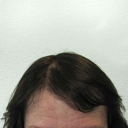 Haartransplantation bei Frauen nach der HST-Methode