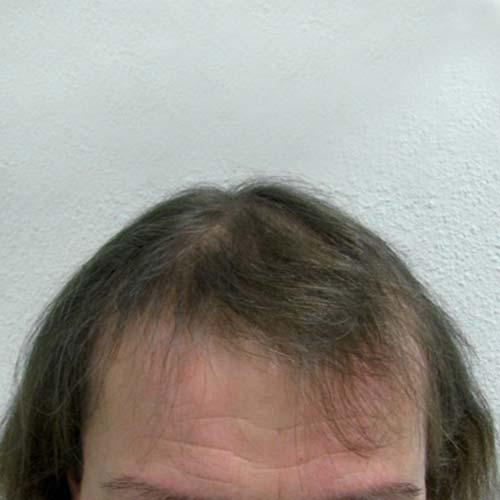 Haartransplantation bei Frauen zur HST-Methode