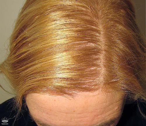 Haarausfall bei Frauen nach Haartransplantation