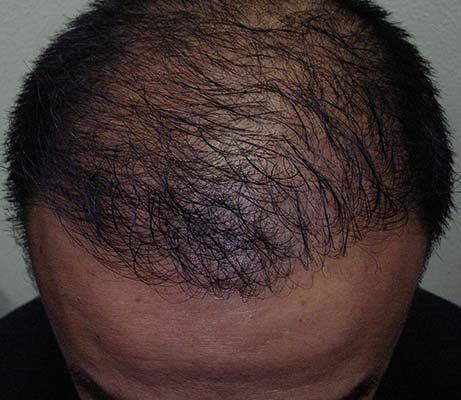 Haartransplantation männlicher Haaransatz nach der Behandlung
