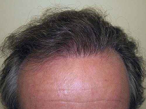 Haartransplantationsmann nach geduldiger Behandlung