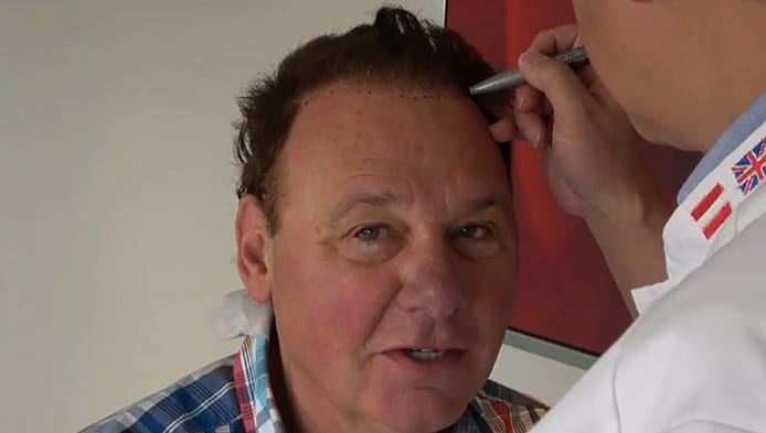 Jan-de-Hoop-hair transplant