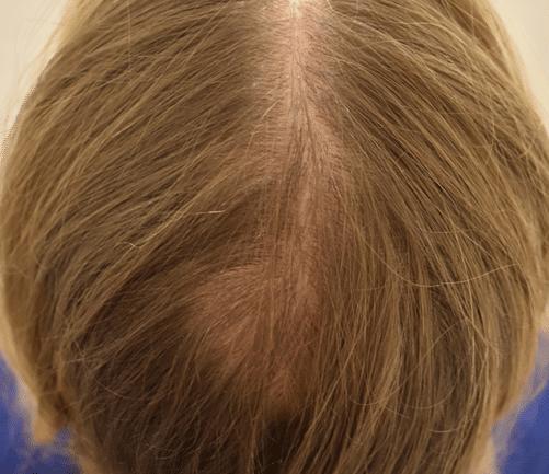Narbe nach Haartransplantation