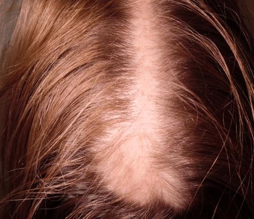 Narbe für Haartransplantatio