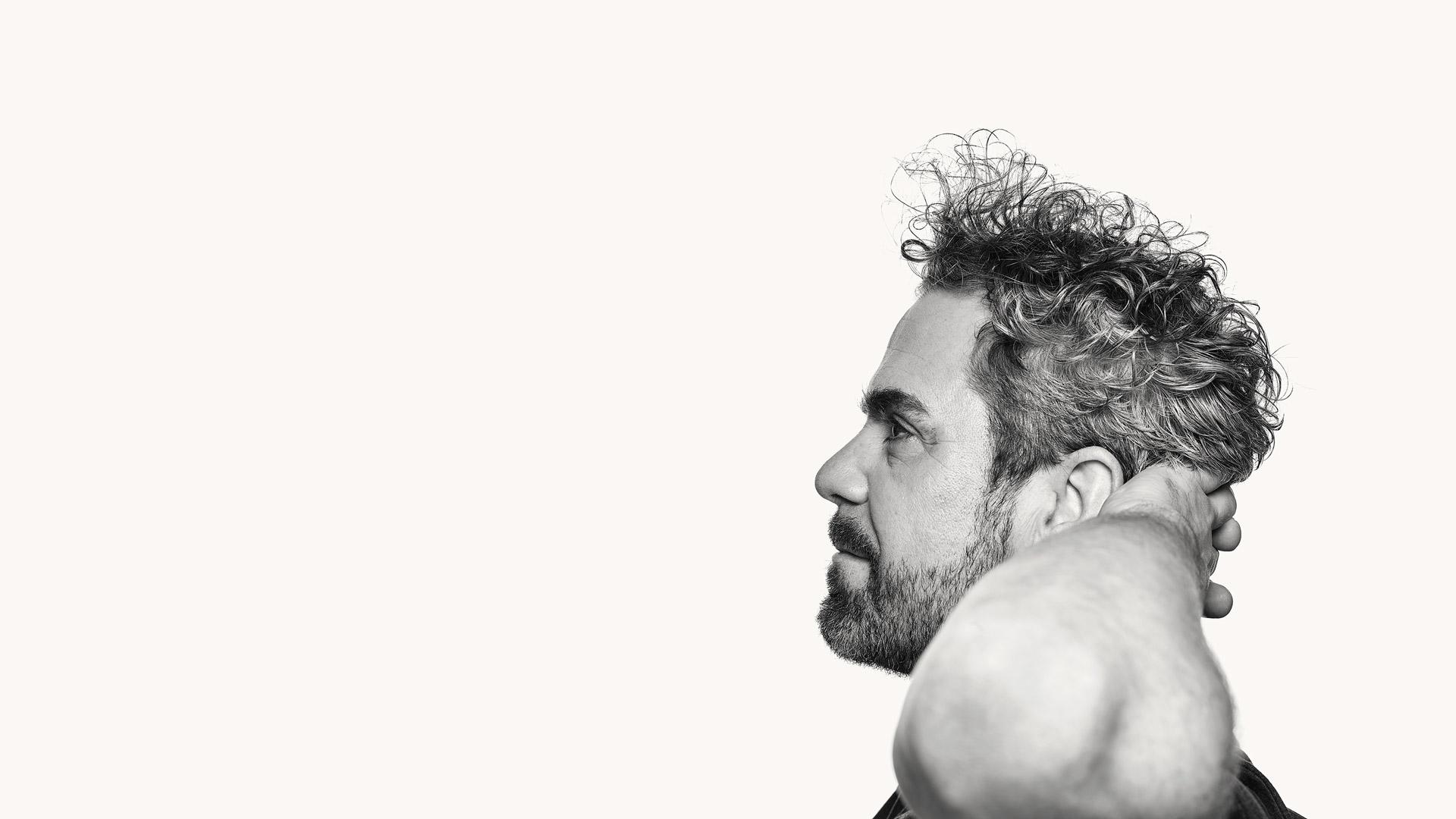 Mann mit Haarausfall nach Haartransplantation zufrieden